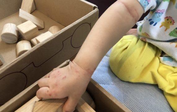 手足口病の発疹
